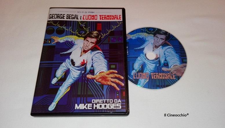 [recensione DVD] L'uomo terminale di Mike Hodges